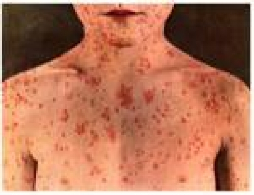 6 Things You Need to Know About Measles